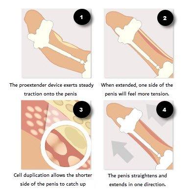 Proextender peyronies treatment
